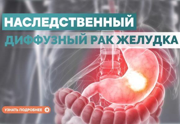 Наследственный диффузный рак желудка